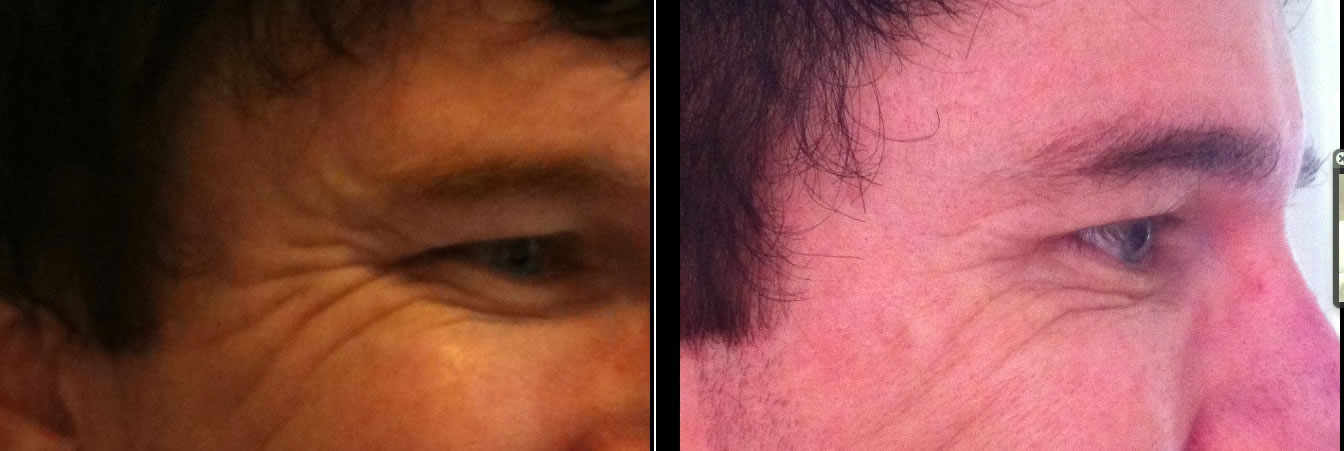 Crows feet before & after *