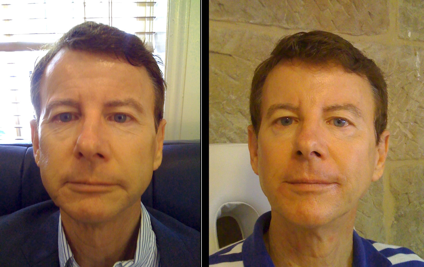 Filler in lower face before & after *