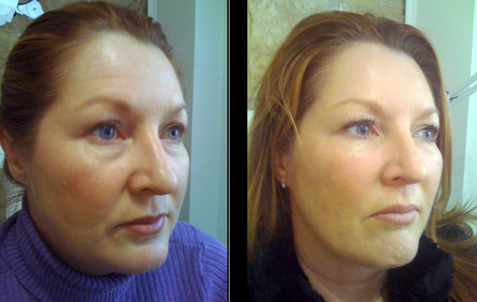 Lower face fillers before & after *