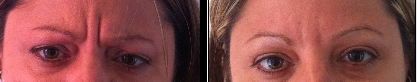 Frown lines before & after *