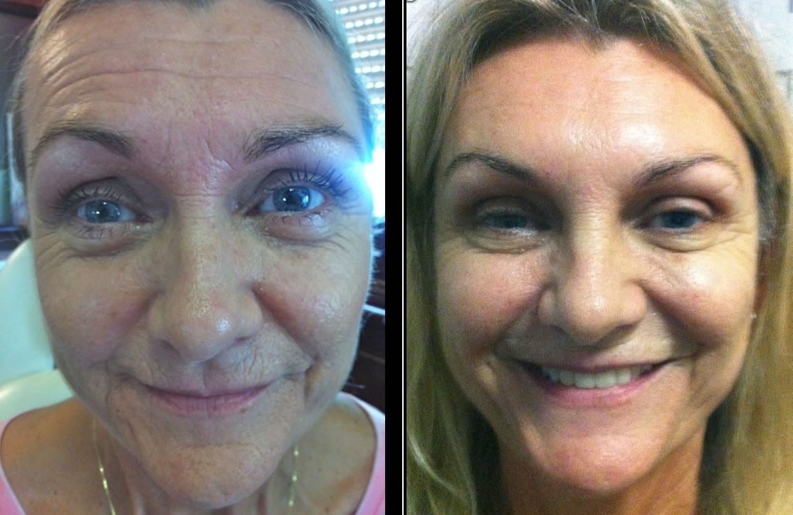 Cosmetic Skin Resurfacing before & after *