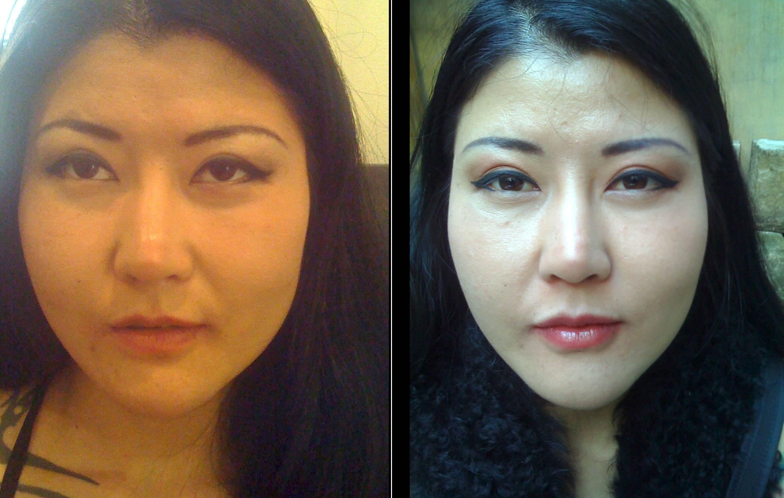 Jawline slimming using wrinkle injections *