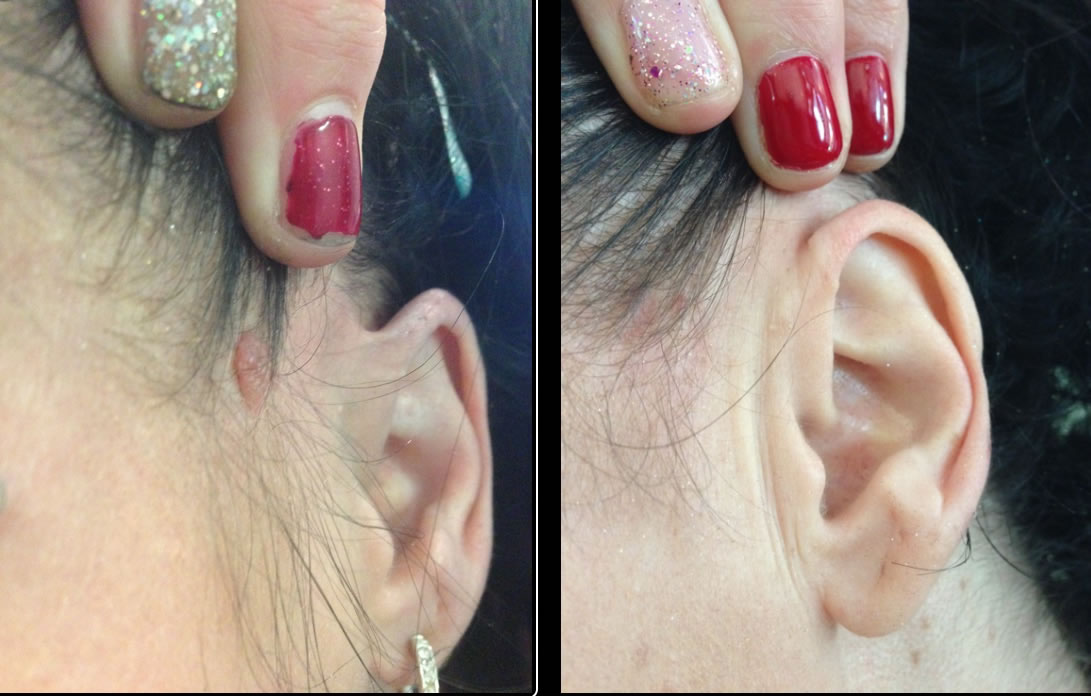 Mole removal before & after *