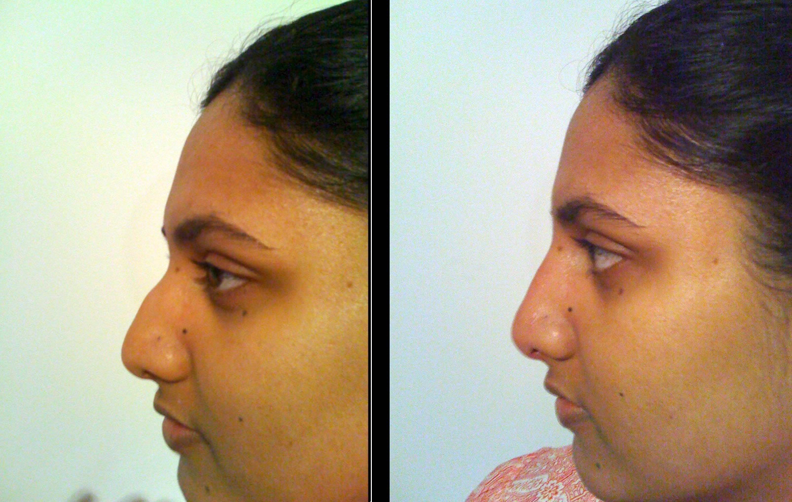 Non invasive nose augmentation before & after *