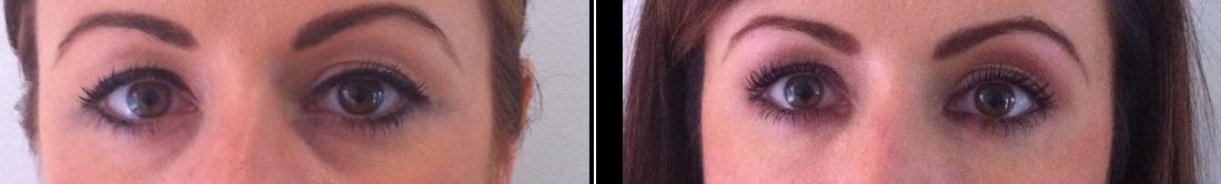 Tear trough filler before & after *