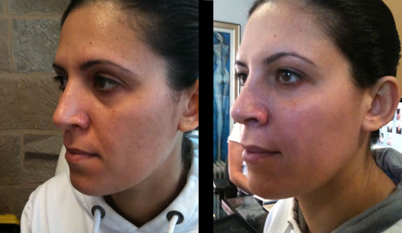 dermal fillers before & after *