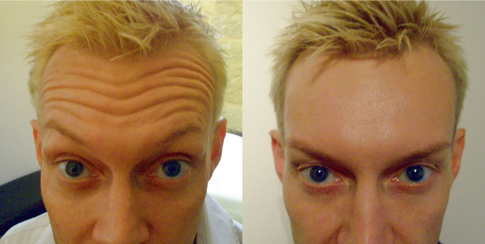 forehead lines before & after *