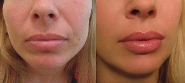 lip injections before & after *