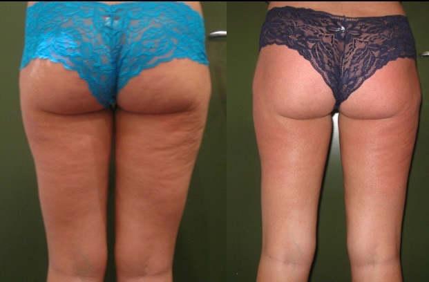 velashape before & after *