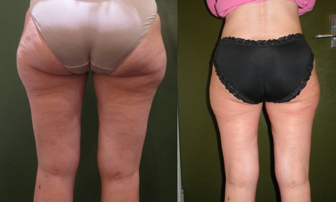 velashape before & after