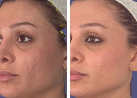 laser treatments for skin conditions